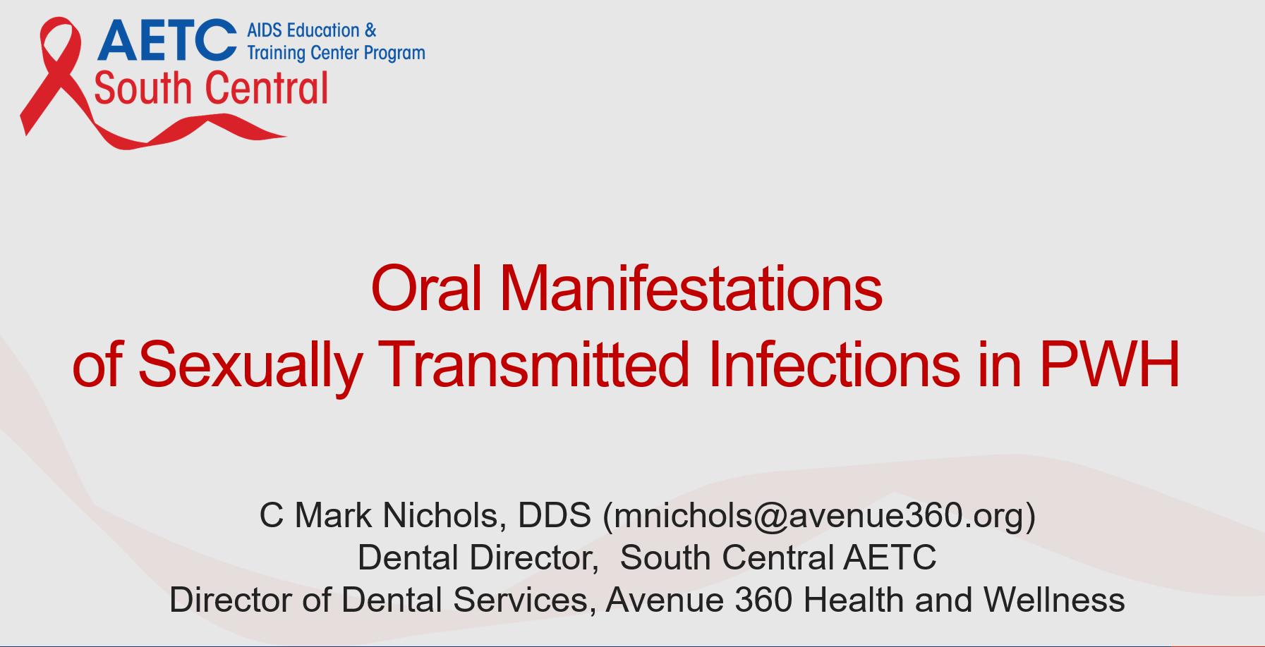 Thumbnail image of Google Slides Presentation of Oral STIs in HIV.